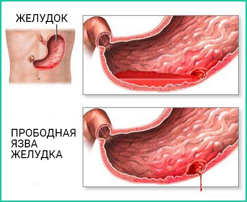 Язва желудка: симптомы, осложнения, лечение