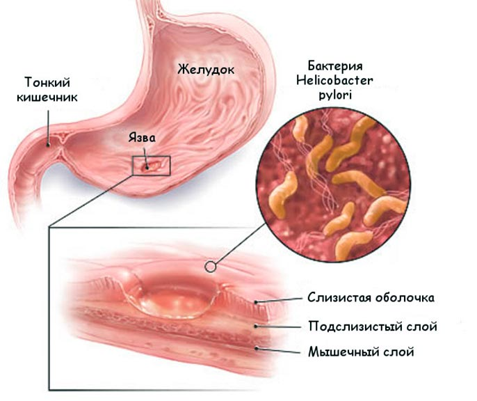 Язва желудка: лечение заболевания, принципы питания