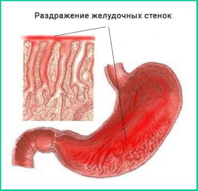 Раздражение желудочных стенок, начальные симптомы не похожи на язвенное заболевание, поэтому легче диагностировать