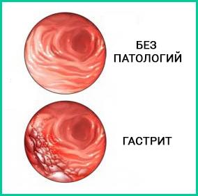 Долгое время гастрит считается заболеванием века