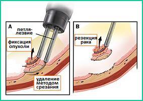 Минимальное вскрытие стенки брюшины, эта операция называется эндоскопической резекцией