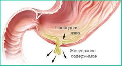 рорыв язвы (перфорация). Попадает в брюшную полость содержимое кишечника