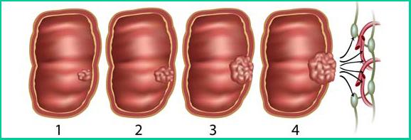 Стадии развития опухоли толстой кишки