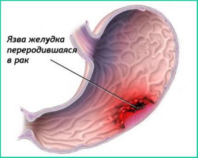 Специалистами доказано, что онкология не поражает полностью здоровый желудок