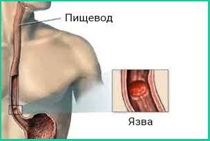 Пептическая язва пищевода — повреждение, возникающее при попадании желудочной кислоты в пищевод