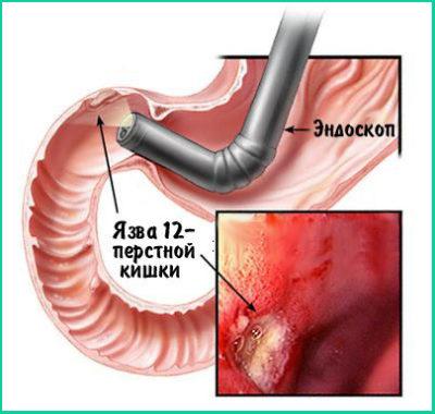 Специалист может осмотреть желудок и двенадцатиперстную кишку с помощью эндоскопа