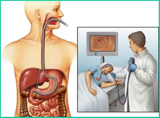 Главным исследованием является ФЭГДС (фиброэзофагогастродуоденоскопия)
