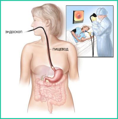 Колоноскопия - наиболее популярный диагностический метод