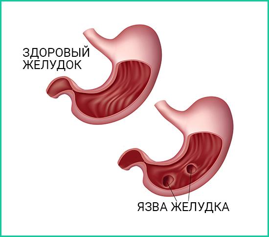 Расположение язв в желудке