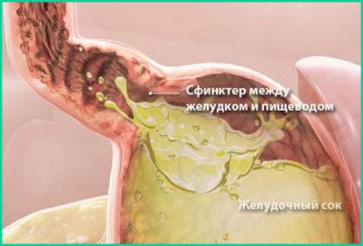 Попадание желудочного сока в пищевод