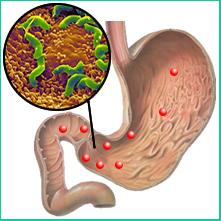 Данная патология обусловлена неправильным питанием, активизацией бактерий Helicobacter pylori