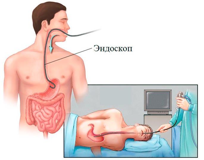 Наиболее популярным методом диагностики язвы желудка является ФЭГДС