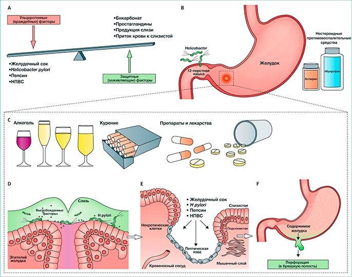 Основной причиной возникновения язвы желудка являеться бактерии Helicobacter pylori