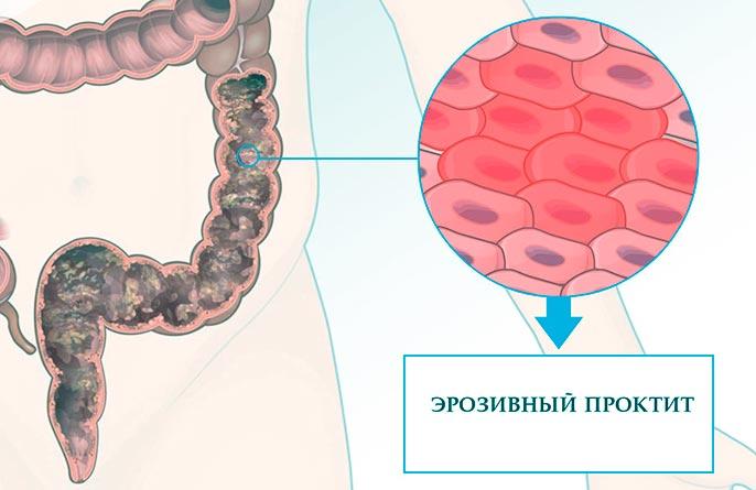 Язвенный проктит может развиться вследствие механических повреждений, термических или химических ожогов