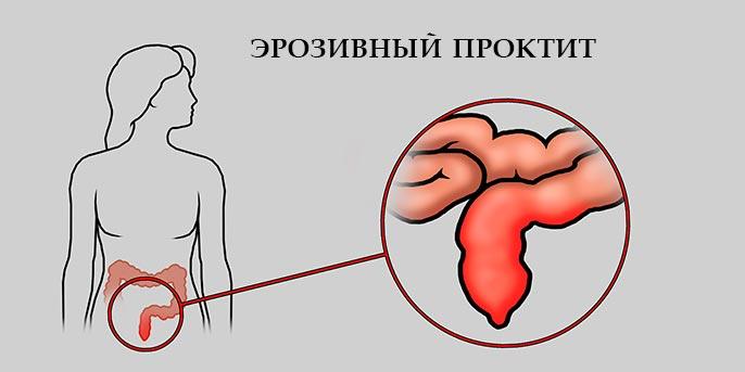 Эрозивный проктит - воспалительное заболевание прямой кишки