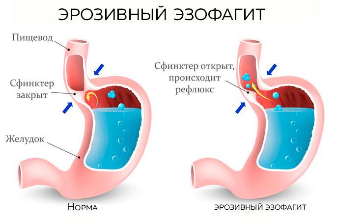 При эрозивный эзофагит повышается температура, развивается общая слабость, снижается аппетит