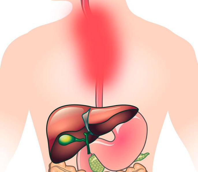 Хронический эзофагит может возникнуть в случае частого повреждения пищевода горячей едой или напитками