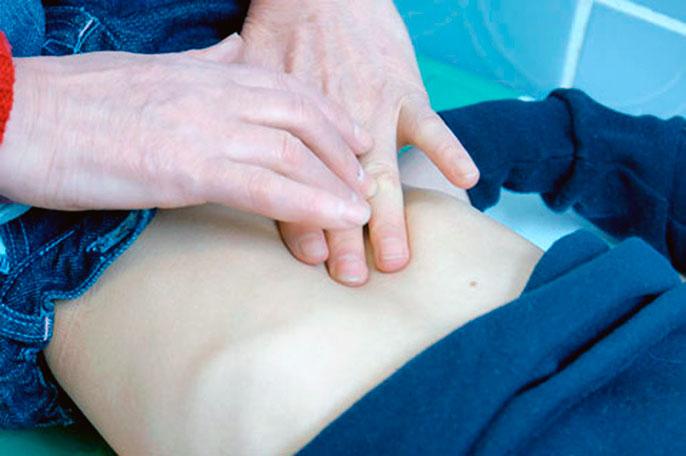 Заворот кишок Причины, симптомы, диагностика, лечение и
