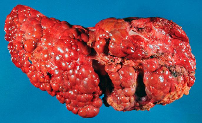 При полном циррозе последней стадии орган перестает выполнять свои функции, происходит сильнейшая интоксикация организма сопровождающая болями