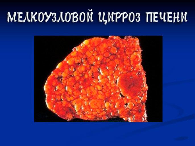 Мелкоузловой цирроз печени - это самый часто встречаемый вид цирроза, который порожает равномерно всю печень