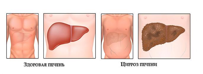 На последней стадии цирроза печени наблюдаеться сильная деформация органа