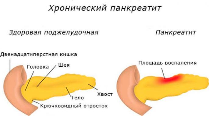 Тяжесть в желудке зачастую бывает развитием патологии поджелудочной железы