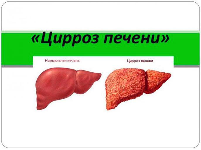 Зачастую исходом хронического гепатита С является цирроз
