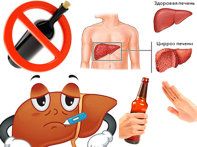 Алкогольный цирроз печени возникает при длительном, систематическом употребление алкогольных напитков