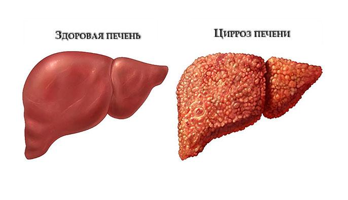 Как выглядит здоровая печень и печень пораженная циррозом
