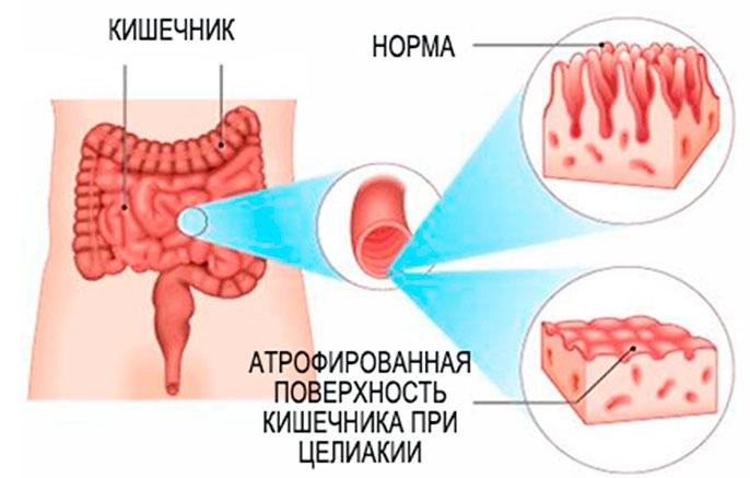 При целиакией наблюдается токсическое поражение тонкого кишечника