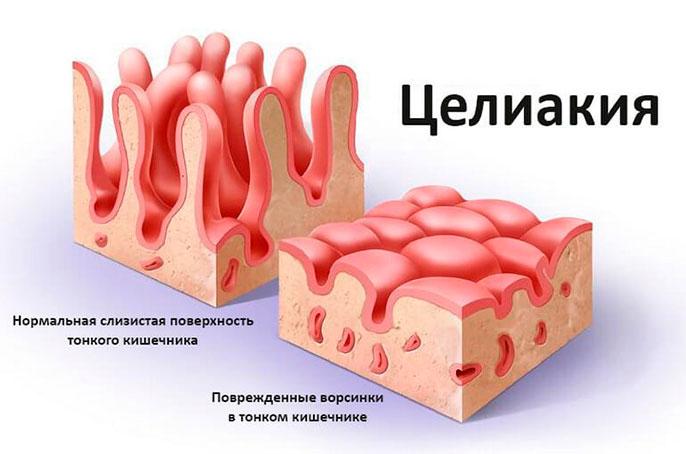 У больного целиакией наблюдается непереносимость глютена