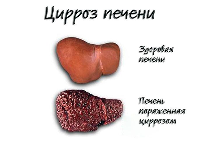 Цирроз перечени у мужчин диагностируют в 2 раза чаще