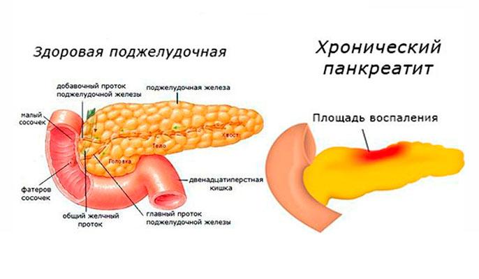 Панкреатит считается хроническим, если восполнение длится более полугода