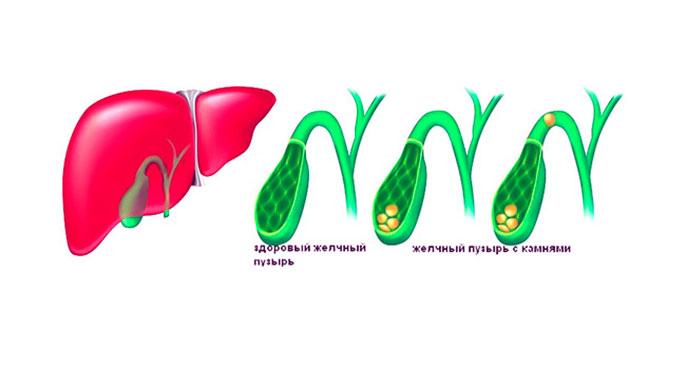 Калькулезный холецистит возникает при застое желчи и как следствие, образованию камней