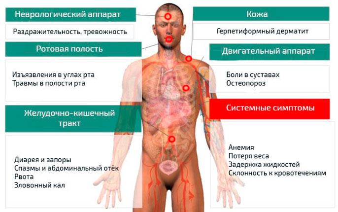 Целиакия в первую очередь поражает тонкий кишечник с сопутствующими признаками