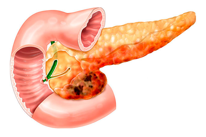 Самые серьезные осложнения при хроническом панкреатите - появление холестаза и токсического гепатита