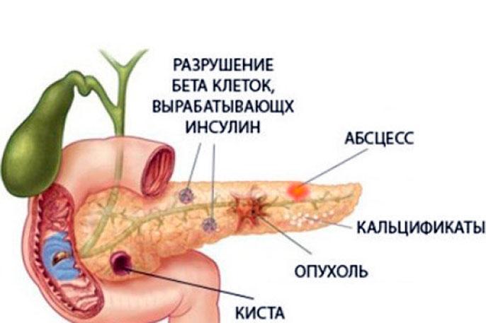 Паренхиматозный панкреатит может возникнуть из-за неправильного лечения острого панкреатита