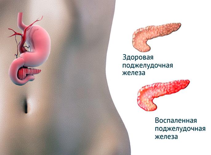 Хронический панкреатит - это воспаление поджелудочной железы с появлением очагов омертвения тканей