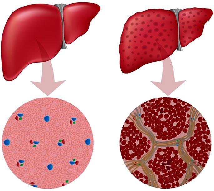 Классификация гепатита делиться на 6 групп: вирусный, аутоиммунный, алкогольный, токсический, криптогенный