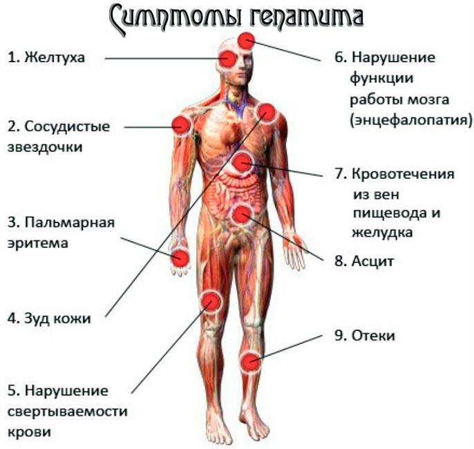 Острый и хронический гепатит С: симптомы болезни и методы лечения