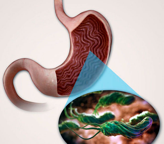 Практически в половине случаев,возникновение язвы желудка происходит из-за проникновениея бактерии Хеликобактер пилори