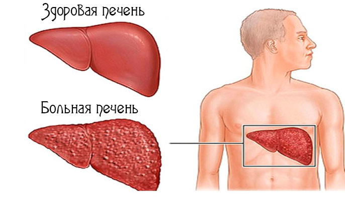 К хроническими воспалительным заболеваниям печени относятся различные формы гепатита