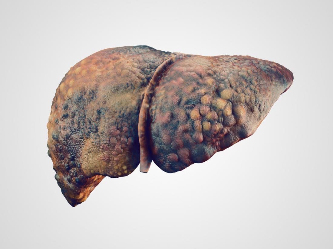 Алкогольный цирроз печени: симптомы, как лечить, прогнозы