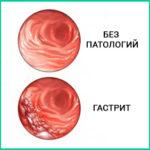 Классификация гастритов, симптомы и лечение