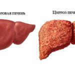 Виды и лечение цирроза печени у взрослых и детей