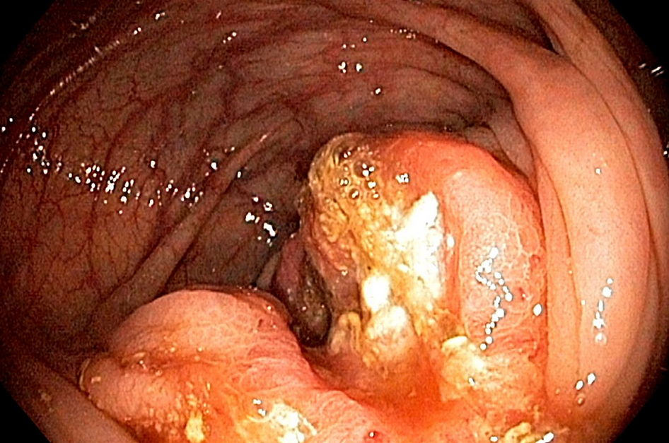 Заболевания язва желудка гастрит