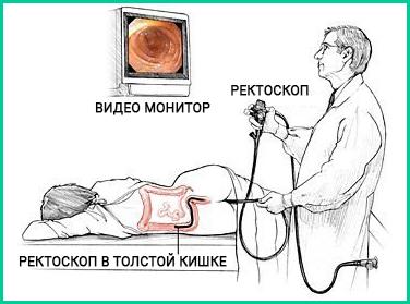 Кишечник человека опухоль