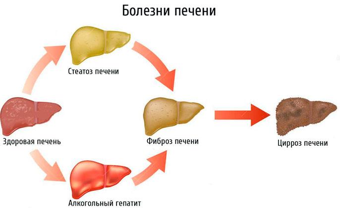 Алкогольный гепатит с переходом в цирроз печени