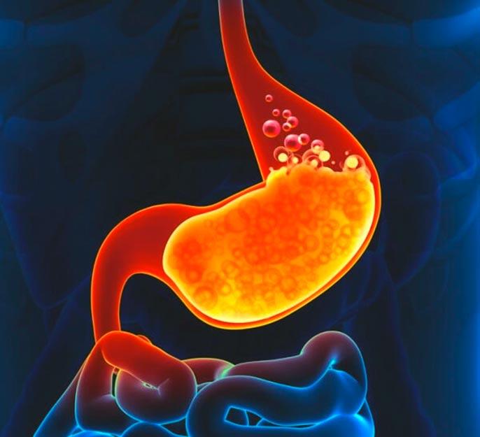 Симптомы обострения гастрита с повышенной кислотностью