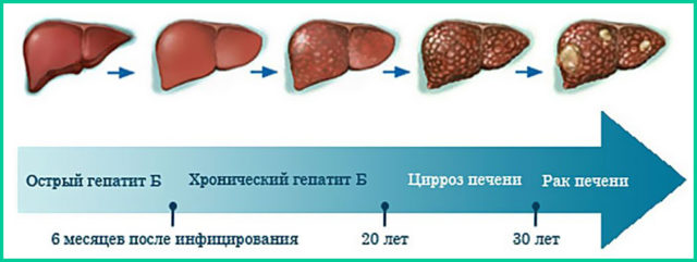 Злокачественная опухоль печени